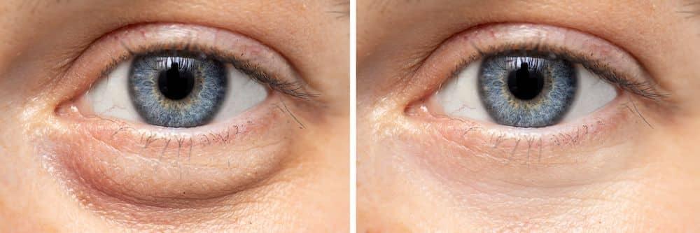 Augencreme bei angeschwollenen Augenlidern und Tränensäcken - Beitragsbild Praxisumschau.org