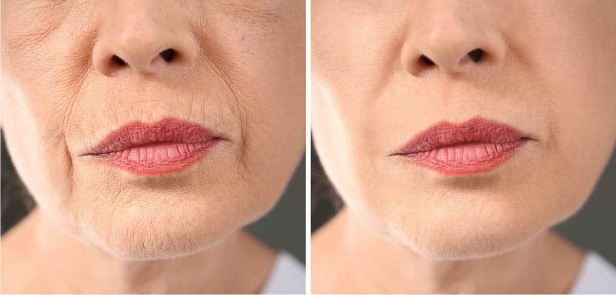 Behandlungsresultat nach 3 monatiger Anti Aging Creme und Anti Falten Creme Behandlung