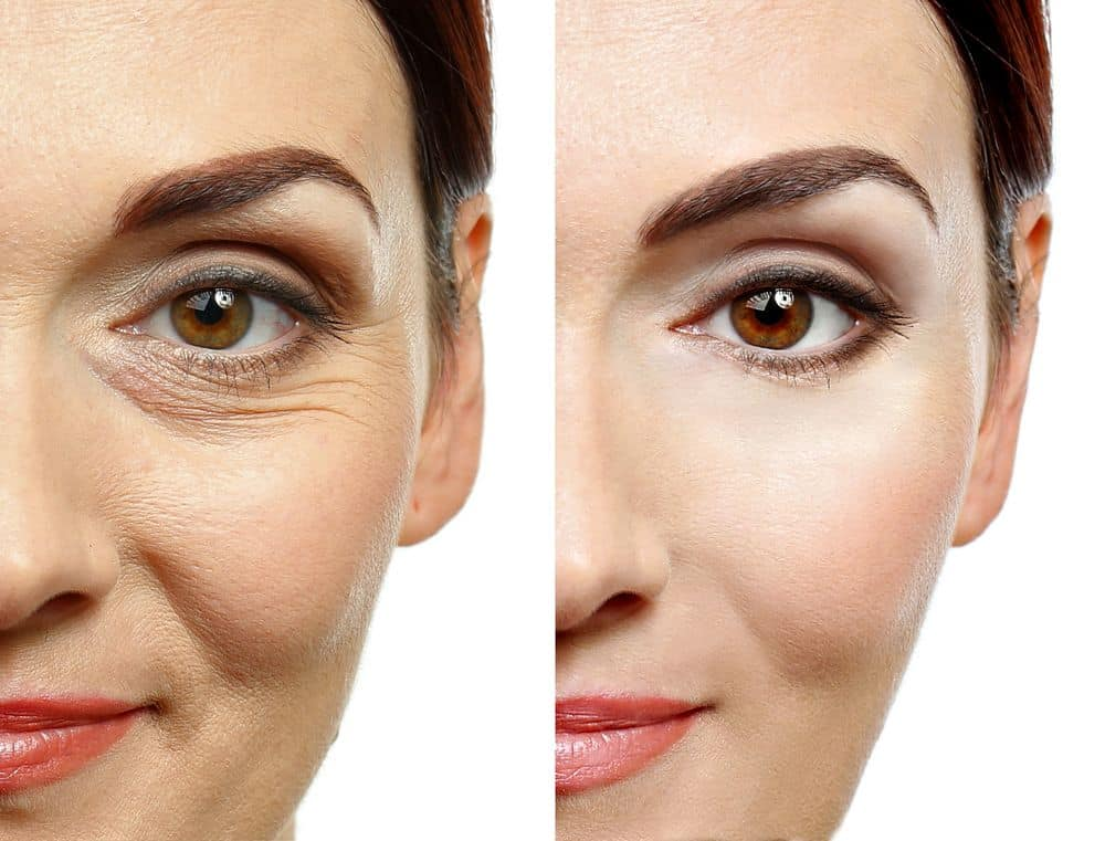 Behandlungsresultat-mit-Anti-Aging-Creme-nach-3-Monaten