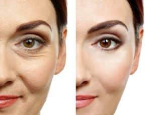Hyaluron Gel Test - Augenfalten mit Hyaluron Gel entfernen