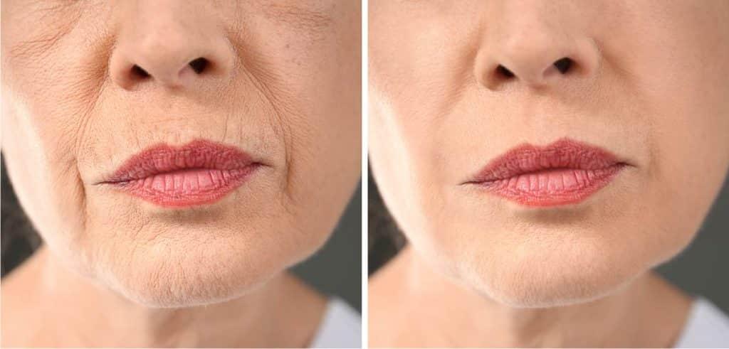 Pflege fuer reife Haut ab 50 - Behandlungsresultat nach 3 Monaten