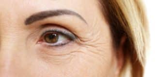Was hilft wirklich gegen Falten unter den Augen - Beitragsbild