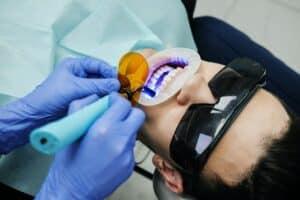 Kosmetische Zahnbehandlungen zur Verschönerung Ihres Lächelns! 1